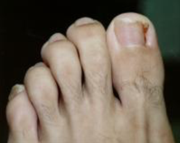 Tips to relieve ingrown toenail pain