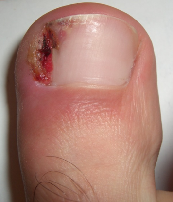 Ingrown toenails are quite painful